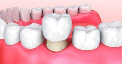 ¿Qué son las coronas dentales y por qué es necesario colocarlas?